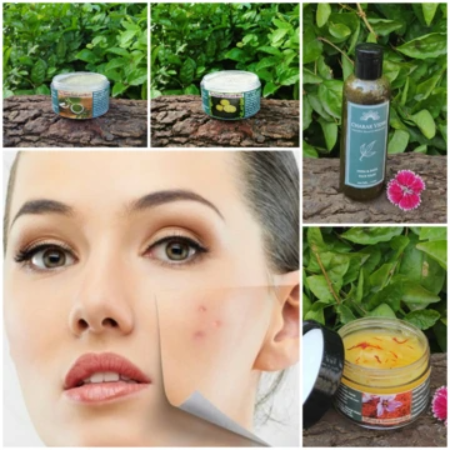 Anti - Pimples & Acne Kit (for Dry Skin)