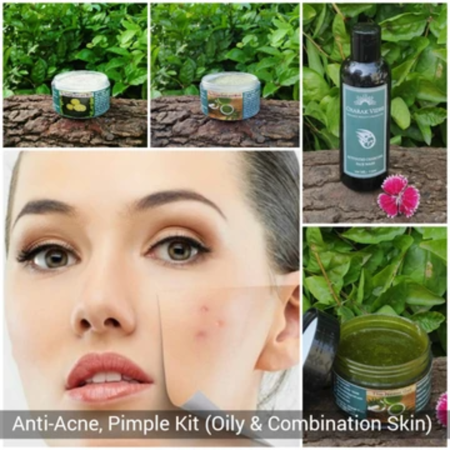 Anti - Pimples & Acne Kit (for Oily or Combination skin)